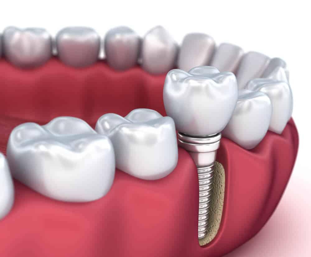 Implant dentaire : quels sont les critères de sélection ?