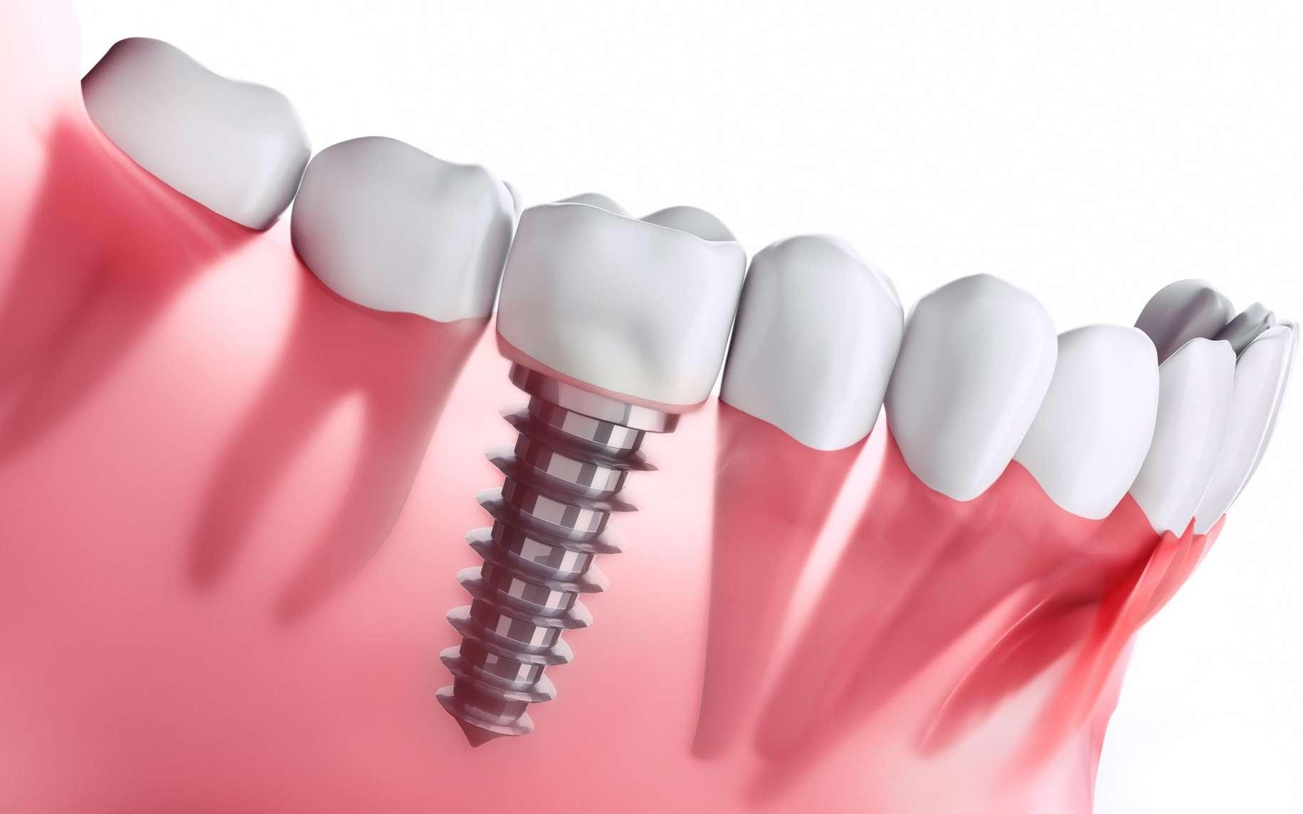Implant dentaire : une bonne idée pour le patient ?